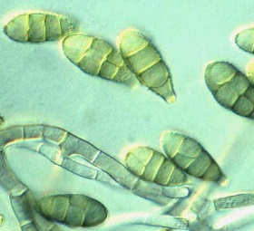 alternaria black mould spores